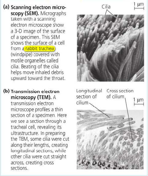 تصویرهای گرفته شده با میکروسکوپ الکترونی نگاره و گذاره از یک سلول نای خرگوش