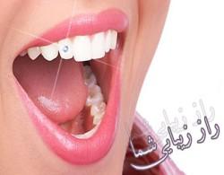نگین های زیبایی دندان