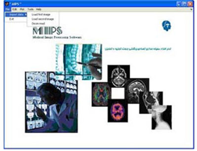 Medical Image Processing Software