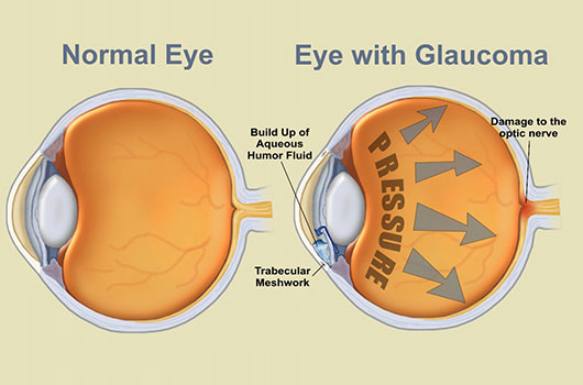 Eyes Glaucoma