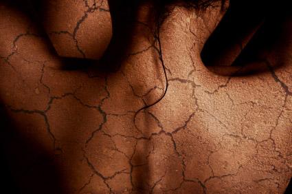 بهداشت و زیبایی: ۶ توصیه برای جلوگیری از خشکی پوست